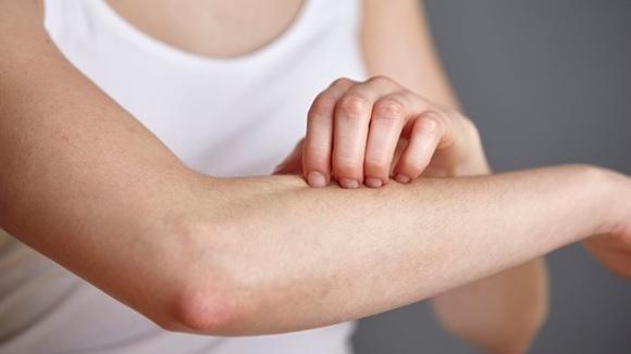 la ansiedad y la piel