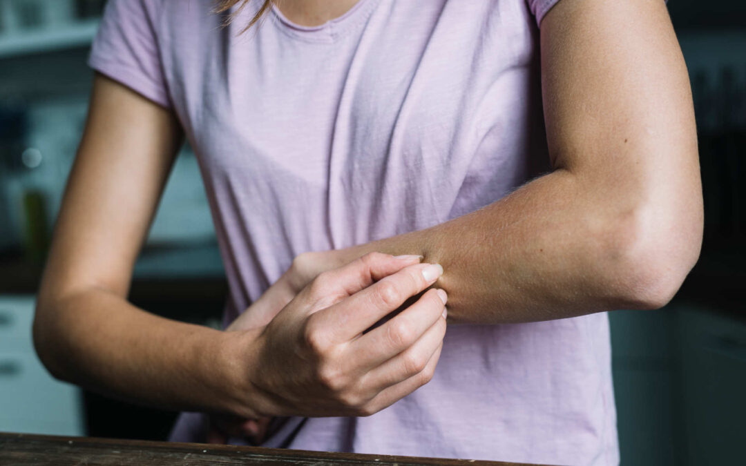 Dermatitis durante el confinamiento